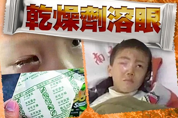 """恐怖!河南8岁男童吃零食""""炸瞎眼"""""""