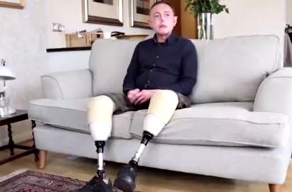 他被自家狗舔了一口 不但毁了容还失去了双腿和6根手指