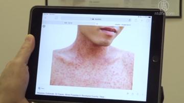 旧金山发现一麻疹患者 五年来首例